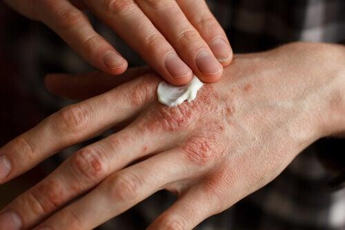 линиите по ноктите на ръцете може да са в следствие на псориазис