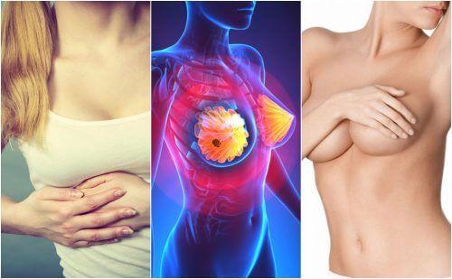 9 симптома на рак на гърдата, за които всички жени трябва да са информирани