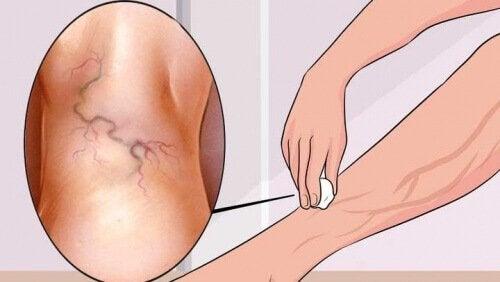 8 упражнения за справяне с разширените вени