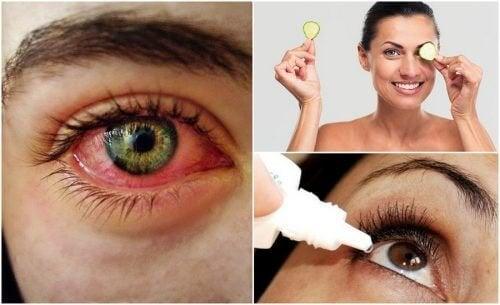 Как да се преборим със синдрома на сухото око естествено