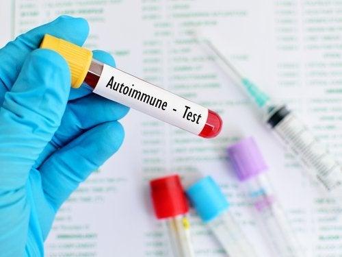 Системният лупус еритематозус и автоимунният тест