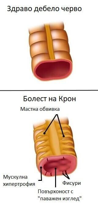 Кои са факторите за болестта на Крон?