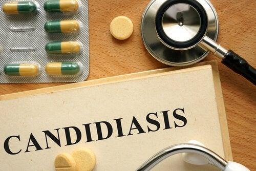 Кандидоза, как да я лекувате