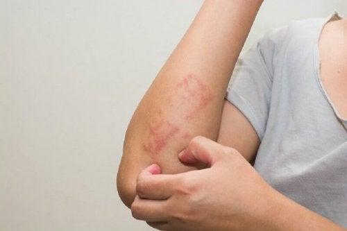 Петна по кожата като признак на левкемия