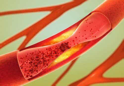 12-те най-подходящи храни за отпушване на артериите
