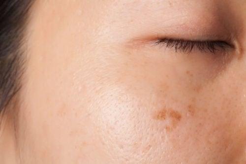 Петната по кожата може да са свързани с рака.