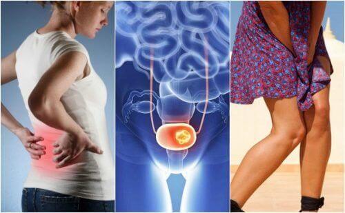 7 признака на рака на пикочния мехур, за които трябва да внимавате