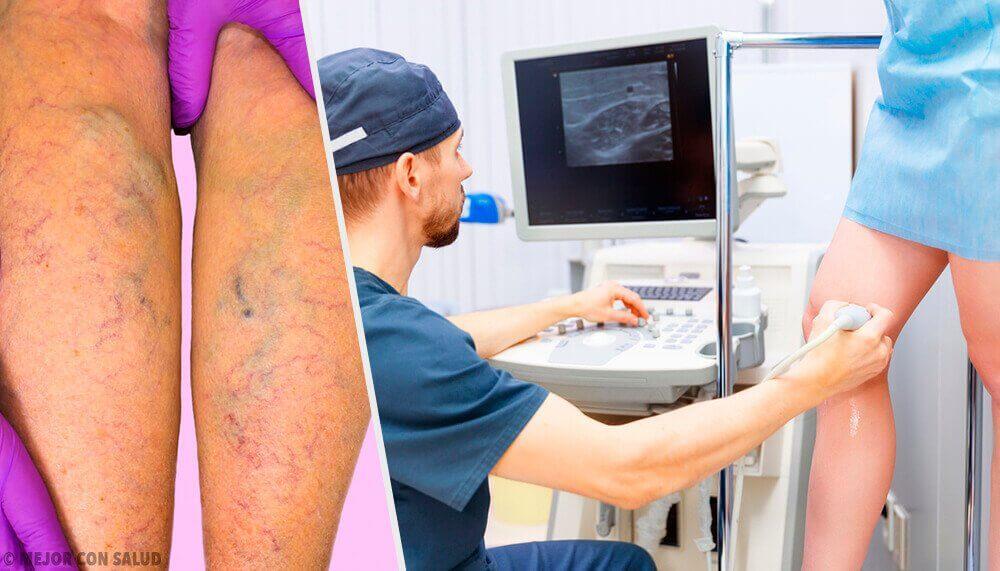 Натурални топикални и орални лечения против разширените вени