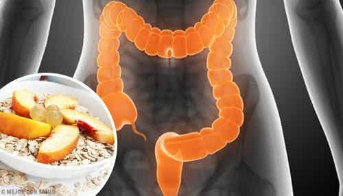 Какво трябва да ядете при синдрома на раздразненото черво