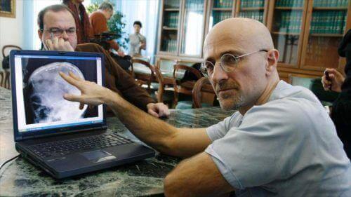 мечтата му като учен е да стане първият лекар направил успешна трансплантация на глава.