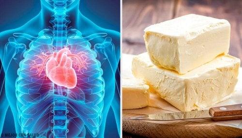 5 храни, които сериозно вредят на сърцето ви