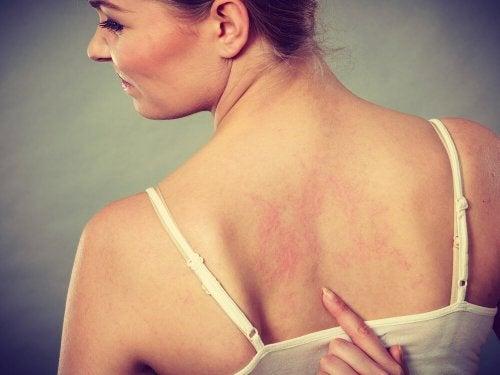 зачервена кожа причинена от кръвосъсиреците