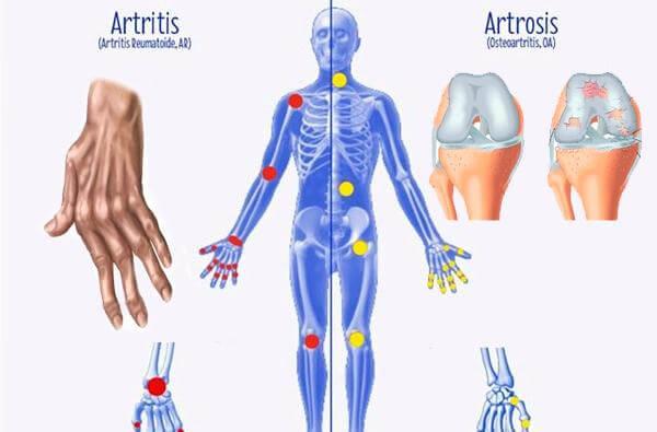 Разликите между артрит, остеоартрит и остеопороза