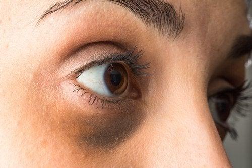торбичките под очите понякога се дължат на хормонален дисбаланс