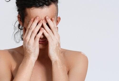 витилигото се характеризира с бели петна по кожата