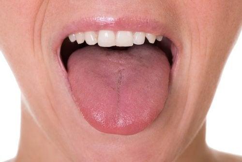 Първите 5 симптома на рак на езика