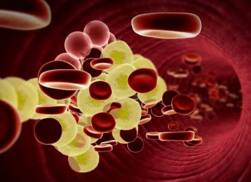 холестеролът има връзка с това дали спазвате здравословно хранене или не
