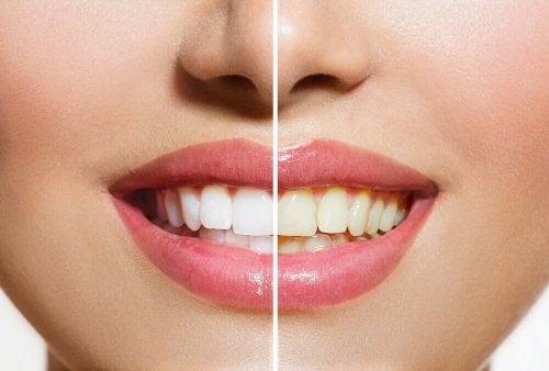 Натурални продукти за избелване на зъбите