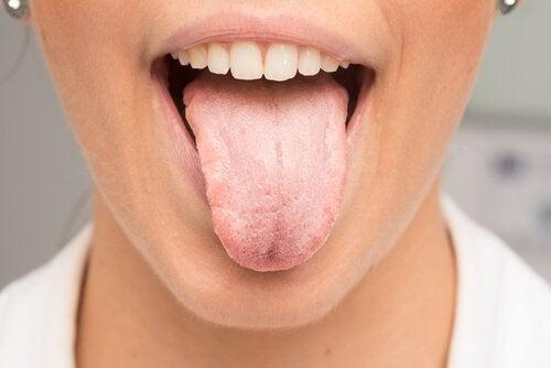 причини да побеляването на езика