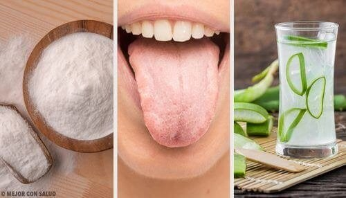 8 натурални средства против побеляването на езика