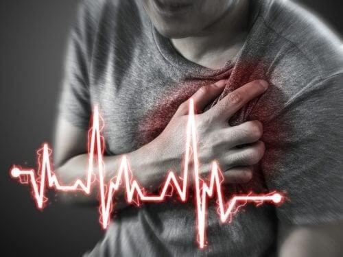 Острият инфаркт на миокарда също може да доведе до появата на епигастралгията