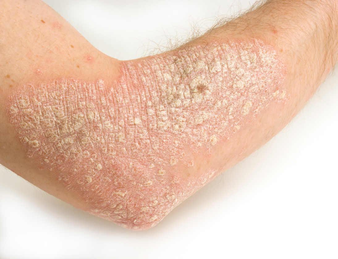 съвети за лекуване на псориазис със сарсапарила