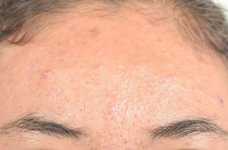 Ефикасни натурални средства срещу себореен дерматит