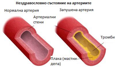 заболявания на артериите