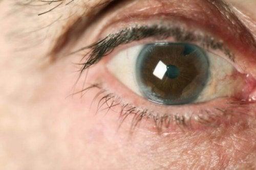 постовянето на навременна диагноза глаукома е изключително важно