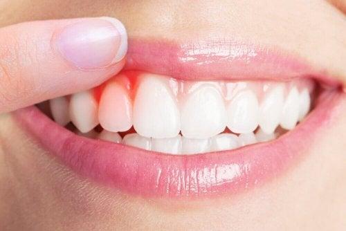 5-те най-добри средства при инфекции на венците