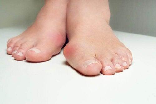 5 билкови средства, които помагат на кокалчетата на краката