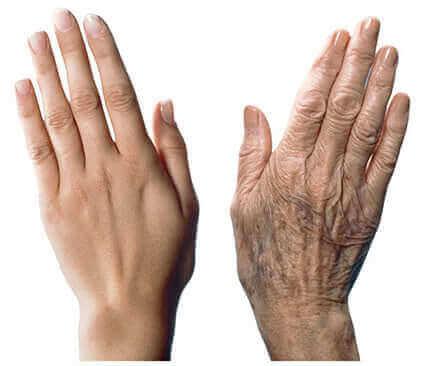 7 съвета с грижа против стареенето на кожата на ръцете