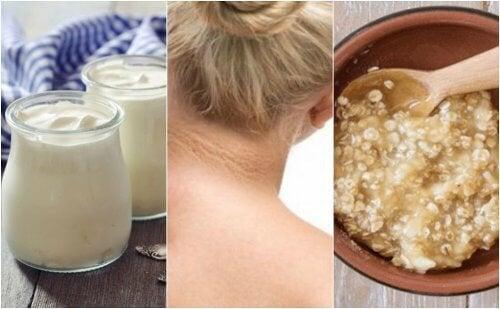 5 натурални средства против тъмните петна по шията