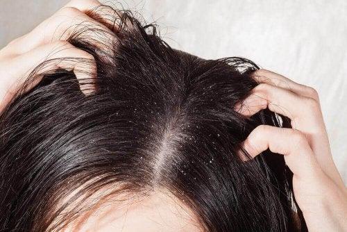 6-те най-добри натурални средства против гъбички по главата
