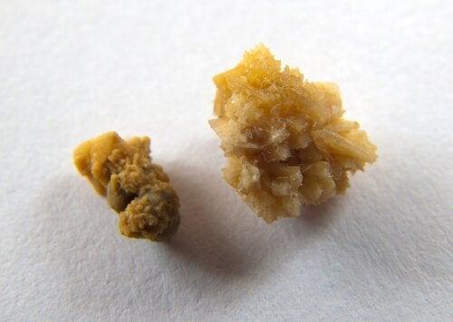 цветът на урината се променя при камъни в бъбреците