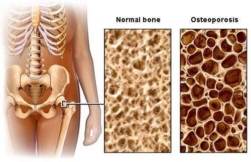 Диета за предотвратяване появата на остеопороза