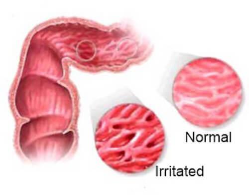 Чайове за облекчаване на синдрома на раздразненото черво