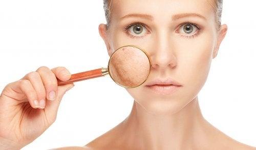 понякога кожните проблеми могат да бъдат симптом на синдрома на поликистозните яйчници