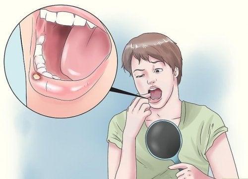 8 натурални средства при афти в устата