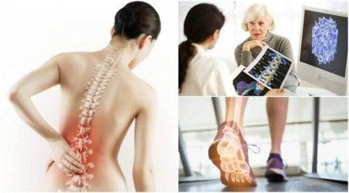 6 интересни факта за болестта остеопороза