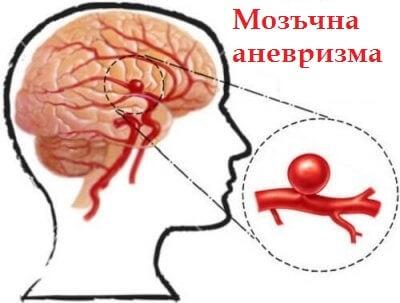 Как да се предпазим от мозъчна аневризма