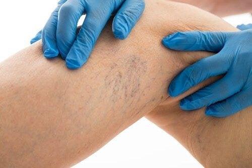 8 правила за лечение на разширените вени
