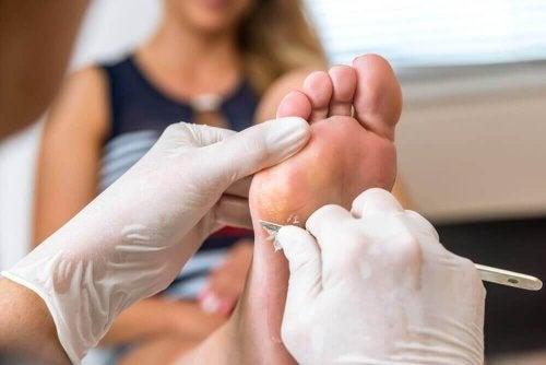 Най-добрите начини за премахване на досадните мазоли по краката