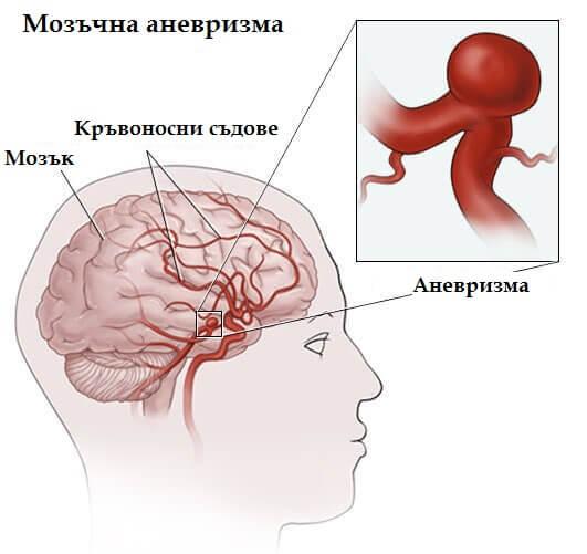 мозъчна аневризма - причини и лечение