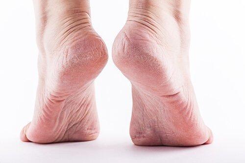 Болката в стъпалата, т нар. плантарен фасциит, се проявява в долната част на петата