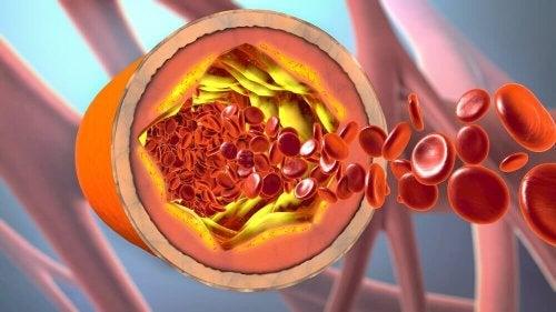 предотвратете запушване на артериите с вода от канарско просо