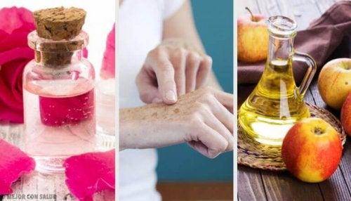 8 натурални продукта, с които да заличим пигментните петна по ръцете