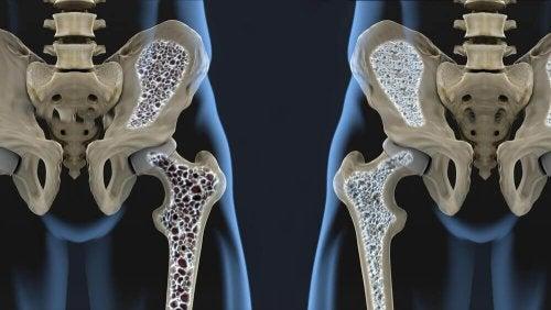 6 съвета как да се храните, за да се предпазите от остеопороза