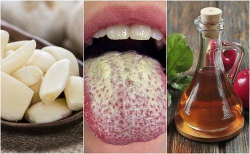 натурална вода за уста против вагиналната кандидоза
