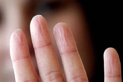 Здравословни проблеми:пръсти на ръка